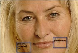 Face with treatment options marked.